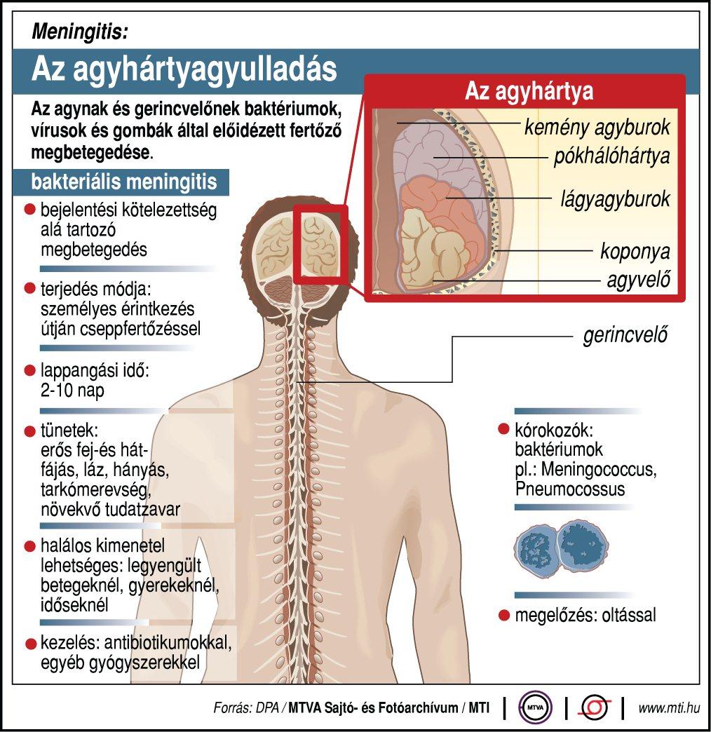 A fertőző agyhártyagyulladás lefolyása